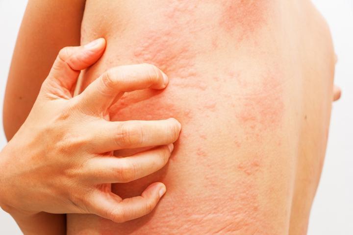 aliviar picor piel atopica